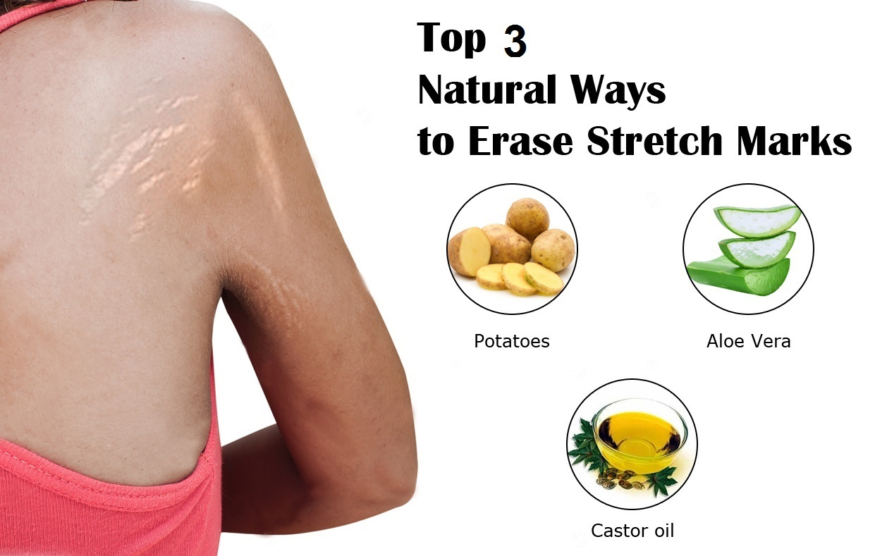 Remove-stretch-marks-naturally-skin-care
